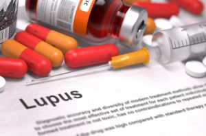 Homecare in Irvine CA: Lupus Signs and Symptoms